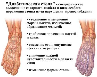 http://mymedicalportal.net/uploads/posts/2014-11/1415525785_diabeticheskaya-stopa.jpg