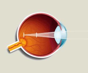 Бейтс улучшение зрения без очков торрент