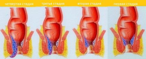 Заболевание геморрой лечение