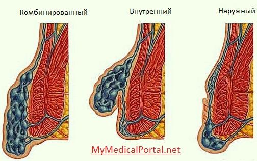 Геморрой у женщин: фото, симптомы и лечение, причины