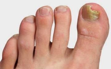 Народное средство от грибка ногтей на ногах с яйцом