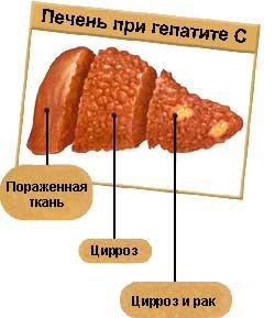 Лечение печени при заболевании сахарного диабета