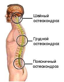 Остеохондроз симптомы лечение
