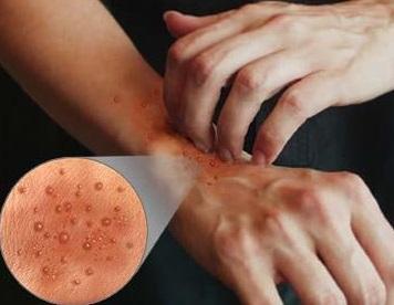 Санаторий баскунчак лечение псориаза отзывы