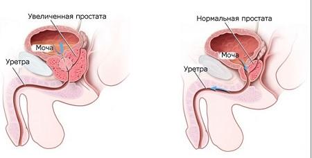 Анализ с секретом предстательной железы