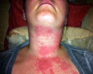 Причина аллергии у взрослых