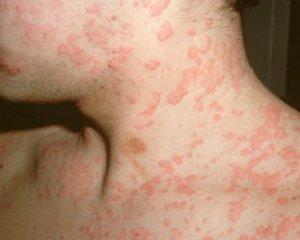 Первые признаки аллергии у взрослых