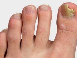 Грибок на ногах лечение