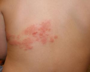 Лишай на коже человека лечение