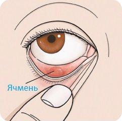 Как убрать ячмень с глаза быстро