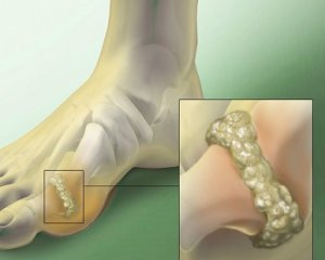 Артрит коленного сустава симптомы и лечение народные методы