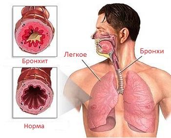 бронхит - лечение в Херсоне