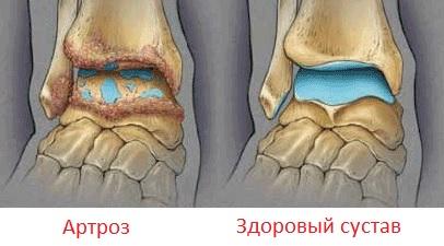 bolit-golenostopniy-sustav-pri-hodbe-po-utram