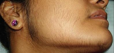болезнь отсутствие волос на теле