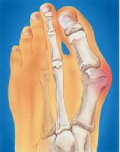Вальгус пальца
