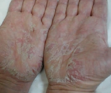 Атопический дерматит фото у детей 2 лет