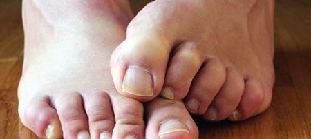Препарат от ногтевого грибка на ногах