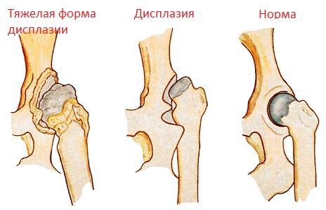 Лечение дисплазии тазобедренных суставов у детей