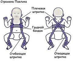 Дисплазия тазобедренных суставов у детей симптомы