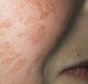 mikoz-naruzhnogo-sluhovogo-prohoda-simptomi