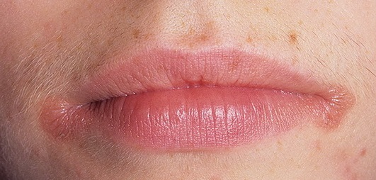 Чем лечить заеды на губах