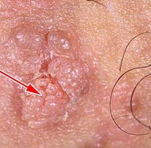 Удаление плоских бородавок на лице отзывы