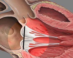 Пролапс митрального клапана - степени, симптомы, лечение