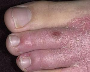 Витамины для лечения атопического дерматита