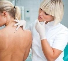 Базалиома кожи - фото, симптомы и лечение