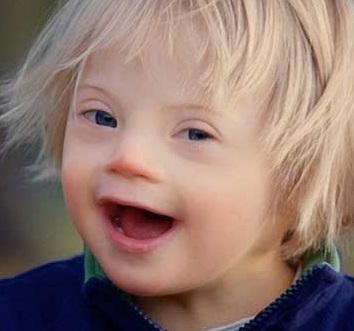 Фото детей с синдромом дауна в год 20 фото