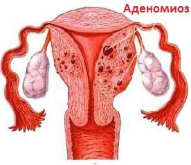 Аденомиоз шейки матки
