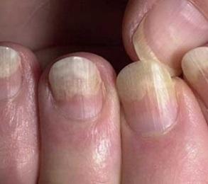 Грибок ногтей и кожи погибает при какой температуре