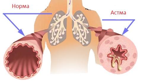 астма, симптомы, лечение, признаки