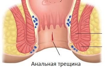 lecheniya-analnih-treshin-doma