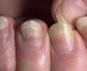 Трещины на ногтях рук лечение лечебным лаком