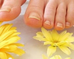Лечение панариция пальца на руке и ноге в домашних условиях