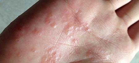розовый лишай у человека фото начальная стадия