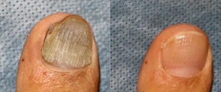 Лазерная терапия от грибка ногтей стоимость