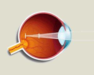 Астигматизм глаз - что это такое? Фото, симптомы и лечение