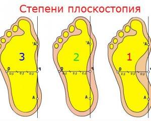 Плоскостопие 3, 2 и 1 степени