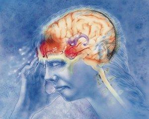 Мигрень - симптомы и лечение