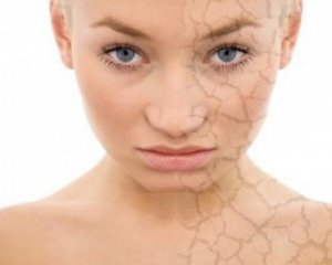 Дерматит на лице - симптомы, фото, лечение