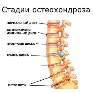 Дегенеративная болезнь поясничного отдела позвоночника остеохондроз