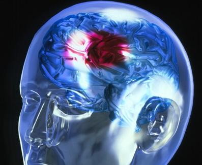 Инсульт: симптомы у женщин и мужчин, первые признаки