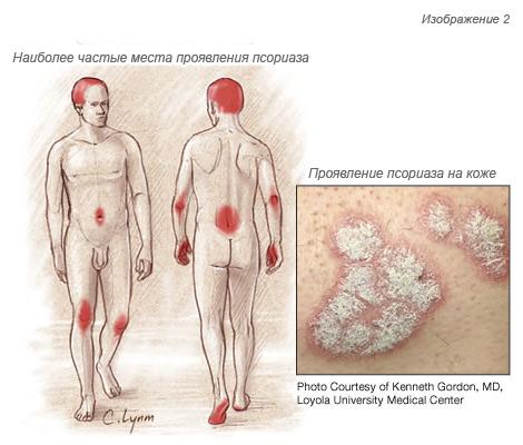 хроническим нефритом симптомы