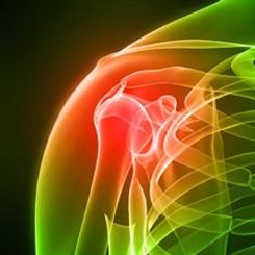 Артроз плечевого сустава - симптомы, лечение