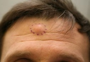 Жировики на лице — как избавиться в домашних условиях