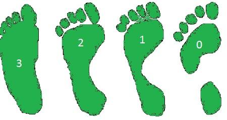 Плоскостопие у взрослых: признаки заболевания и лечение в домашних условиях. Плоскостопие — Причины плоскостопия