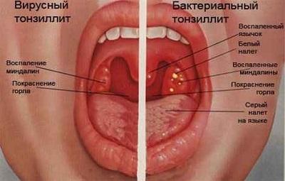 Хронический тонзиллит: симптомы и лечение, фото