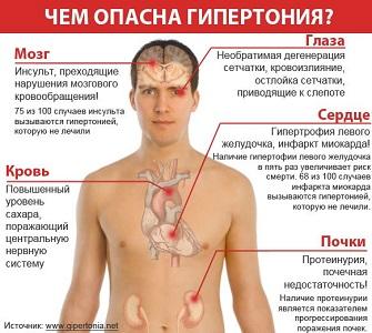 Гипертония: симптомы и лечение, причины, профилактика